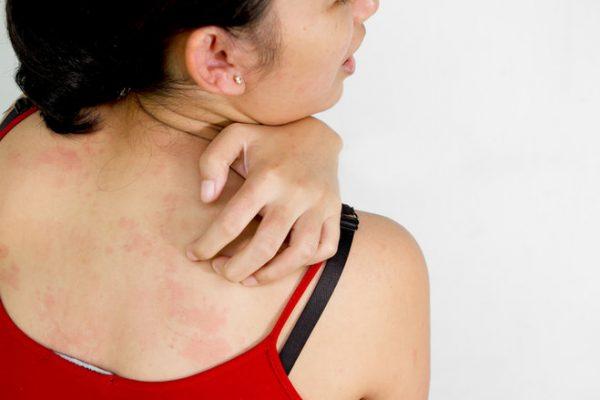 Si la piel te pica… pensá en dermatitis atópica!